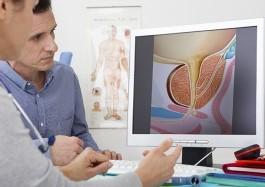 Urologo konsultacija
